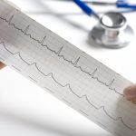 When Should You See a Cardiologist?