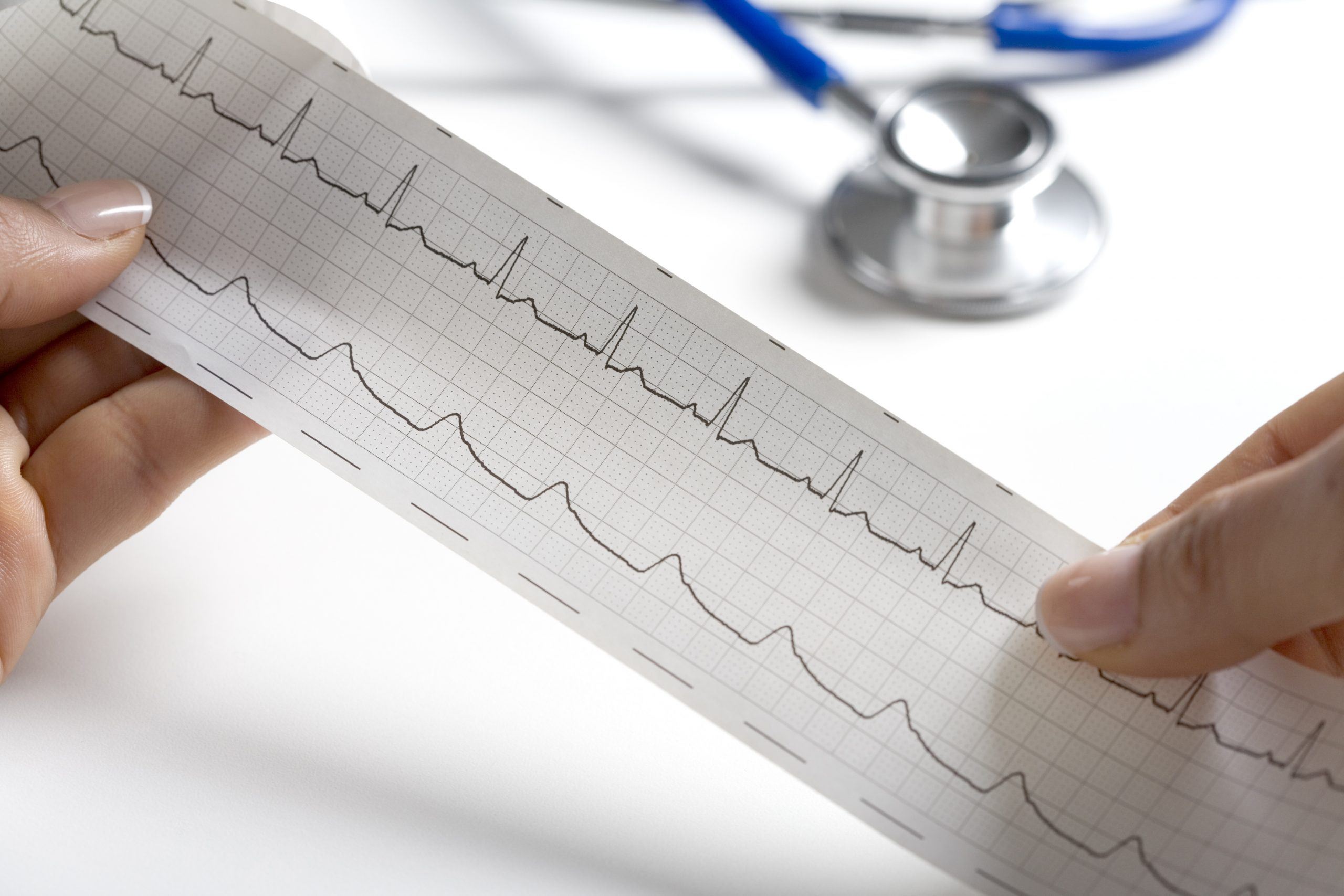 Hands Holding A Regular Ecg With A Stethoscope In The Background